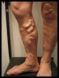 La varicosité lopération saransk