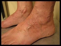 La sensation du mouvement dans les veines des pieds